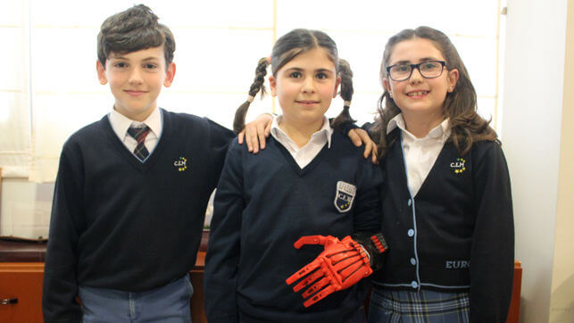 Child with 3D- printed prosthetic hand